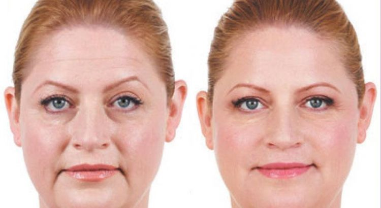 Juvederm - Cosmetic Filler