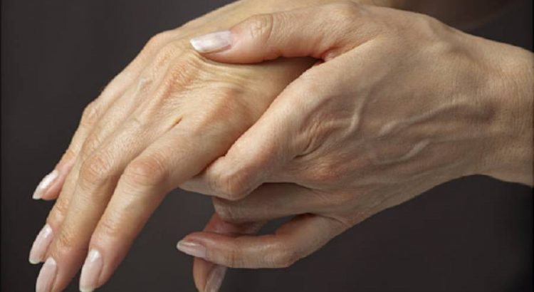 Symptoms of Rheumatoid