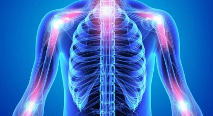 Rheumatoid Arthritis Overview